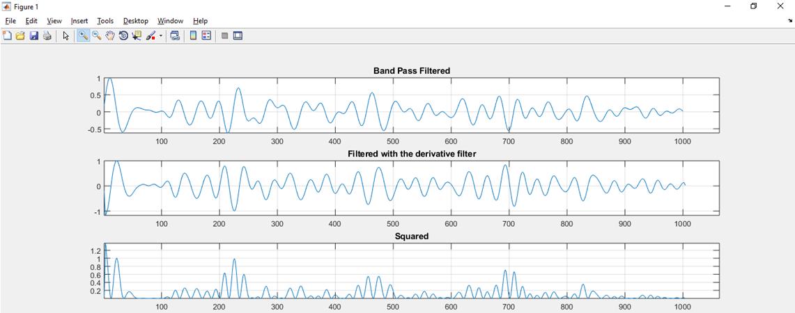 PhD Research Topics in Digital Signal Processing